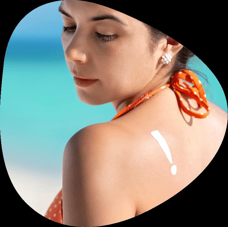 Gebräunte junge Frau an einem Strand, Ausrufezeichen auf der Schulter um auf Sonnenbrand hinzuweisen. Haugesundheit.
